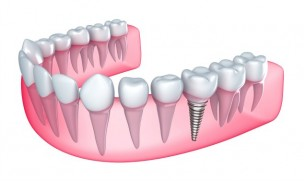 Dental implant services